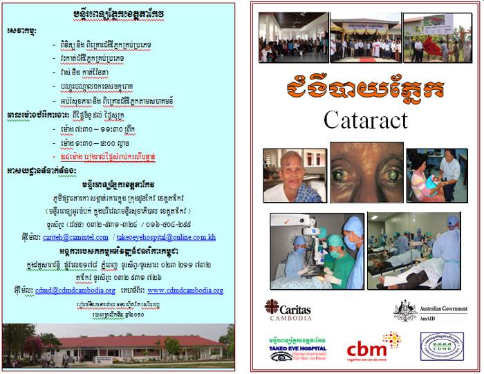 Cataract poster