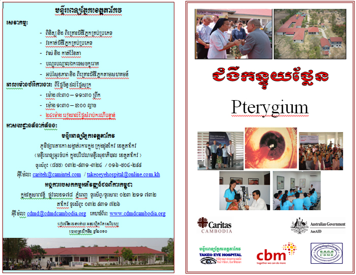 Pterygium poster